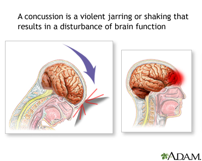 Concussions and Their Treatments