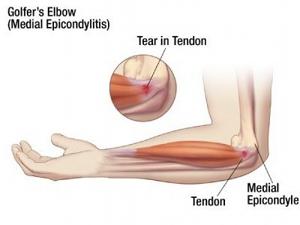 Golfer's Elbow, medial epicondylitis