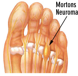 Mortons-Neuroma-diagram