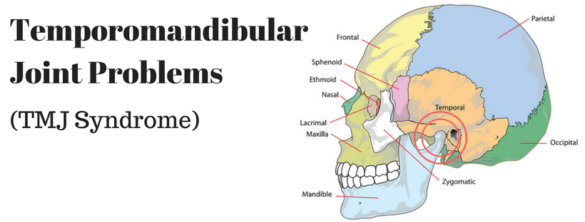 TMJ Problems, TMJ syndrome