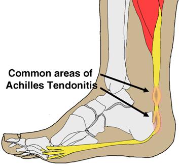 achilles-tendinitis-img2