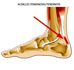 achilles-tendonitis-orthotics