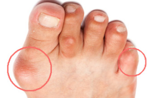 how_to_get_rid_of_a_bunion