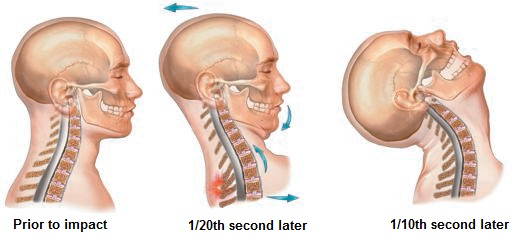 kitchener waterloo chiropractor whiplash