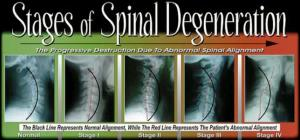 spinal-degeneration