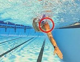 swimming-injuries
