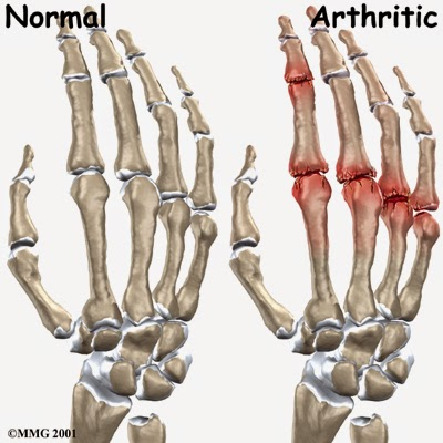 hand_finger_joint_causes01