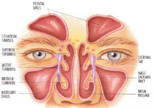 Asthma, Allergies and Sinuses