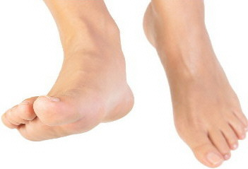 Foot and Shin Issues