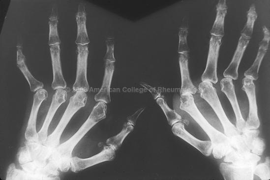 Metacarpophalangeal Joint Arthritis (MCP)