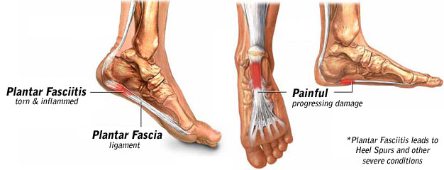 plantar fasciitis stretches