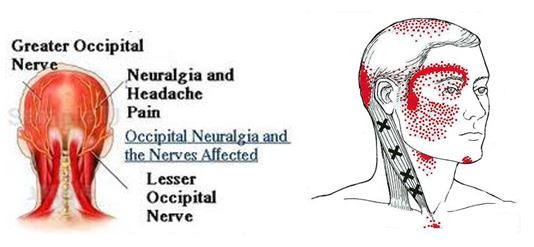 Acuball for headaches and neck pain