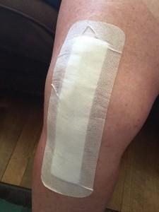 lynn-knee-3