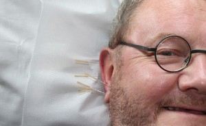 acupuncture for headaches, acupuncture for migraines, acupuncture, acupuncture for acupu, concussions,