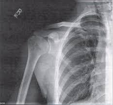 shoulder, shoulder blade, scapula, shoulder pain, shoulder arthritis, shoulder x-ray