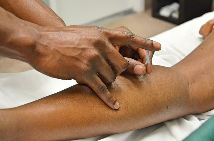 dry needling in ottawa, acupuncture, dry needling, dry needling physiotherapy, physiotherapy, physiotherapist in ottawa, dry needling downtown